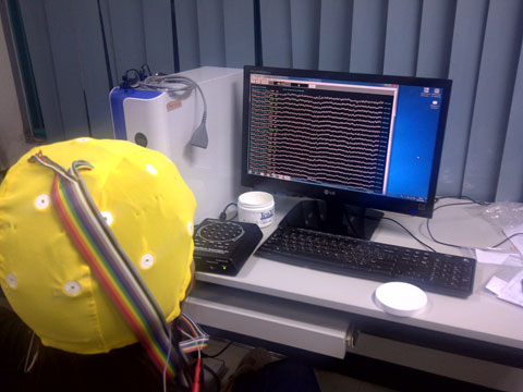 QEEG recording with discovery 24 channel amplifier